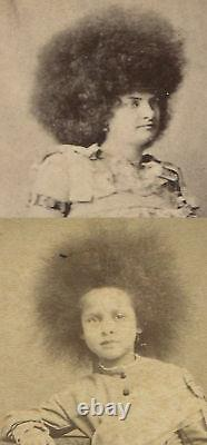 Circus Freaks, Woman, Child With Crazy Frizzy Fair. Cdv, Two Set
